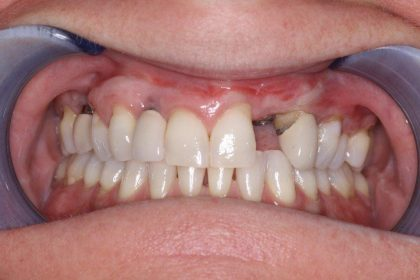 Dental Implants Before & After Patient #409