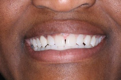 Invisalign Before & After Patient #405