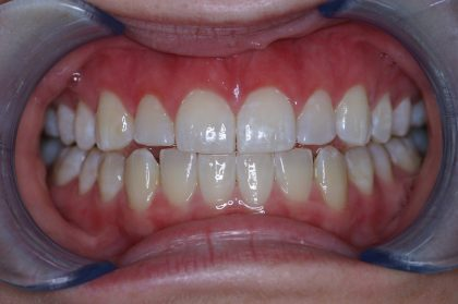 Gum Lift Before & After Patient #399