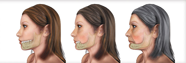 _uploads_2014_04_Bone-Loss-Jaw-Woman-Implant