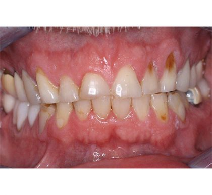 Full Mouth Reconstruction Before & After Patient #415