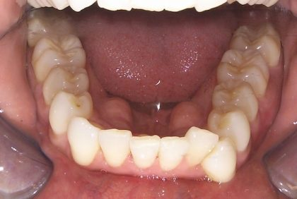 Invisalign Before & After Patient #1348